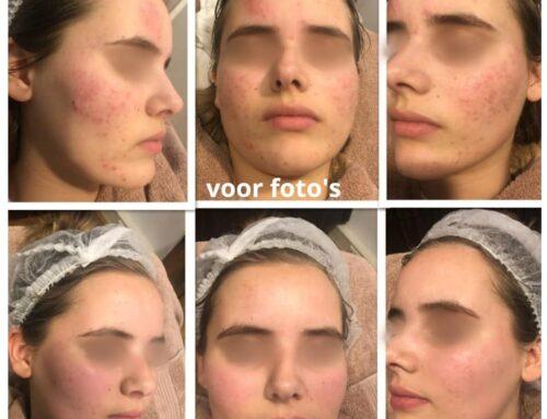 Mooi resultaat na 2 acne behandelingen.