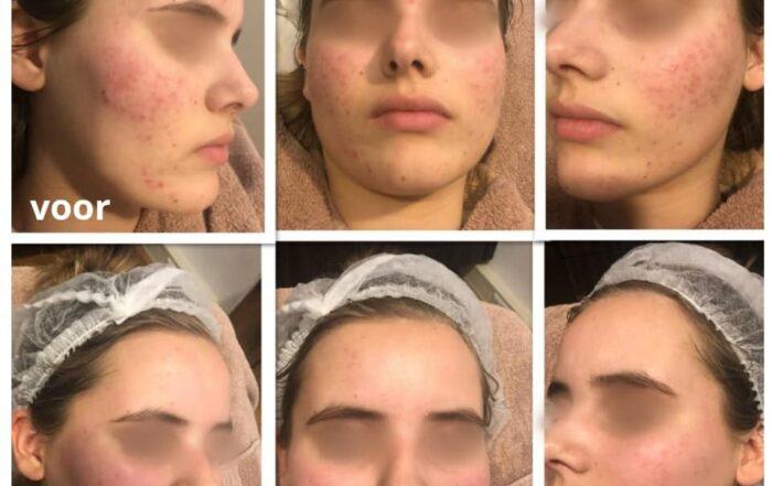 acne foto`s